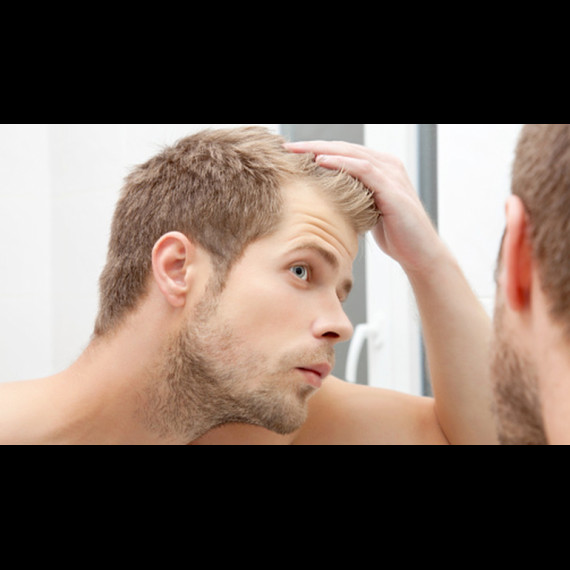 Cause e rimedi per la caduta temporanea dei capelli- L ...